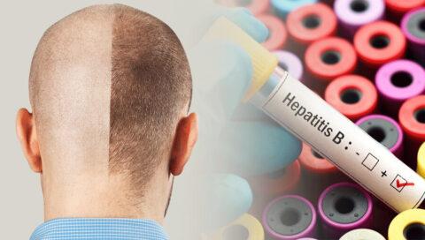 Injerto capilar hepatitis